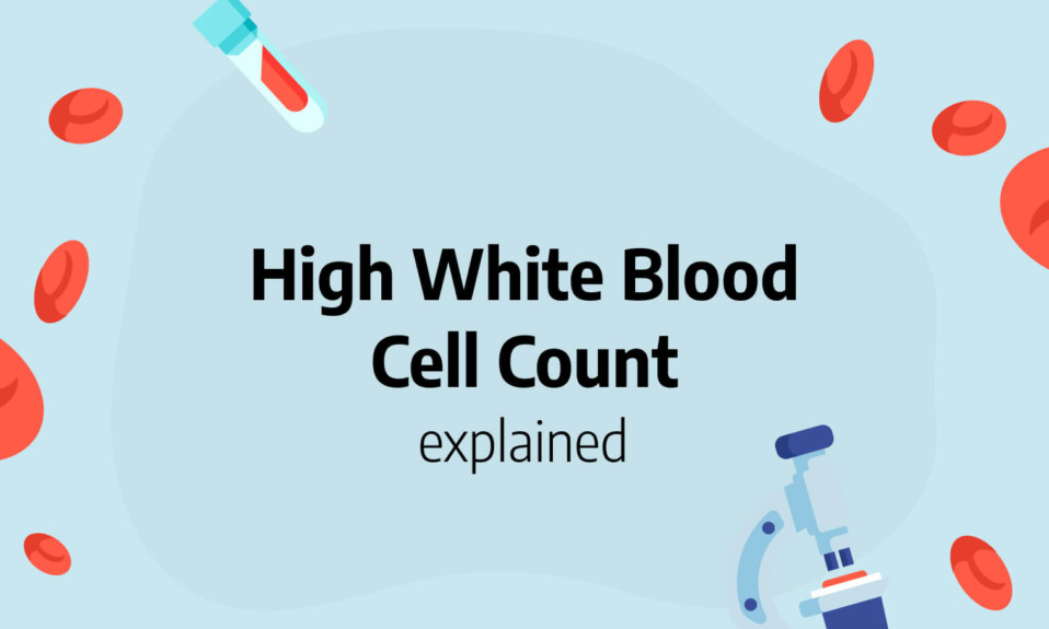 High white blood cell count